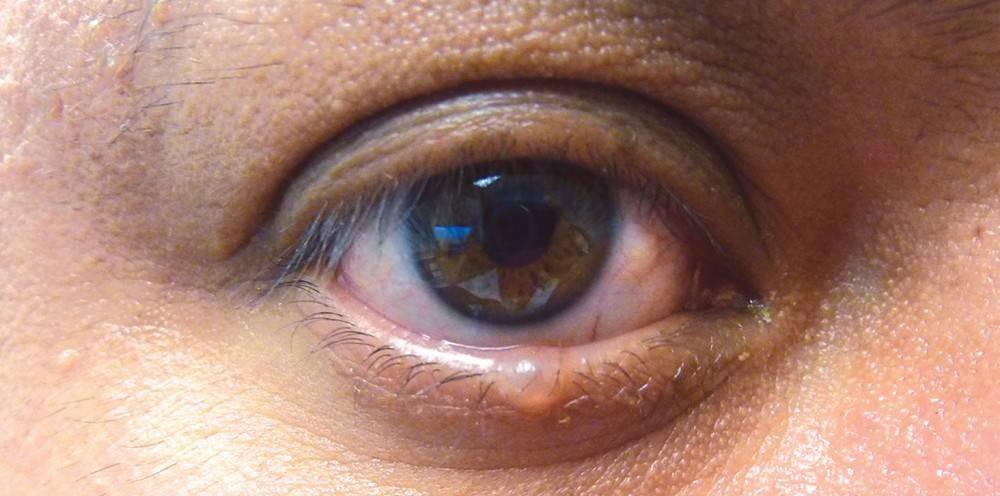 Папиллома на веке глаза: фото, симптомы, удаление и лечение