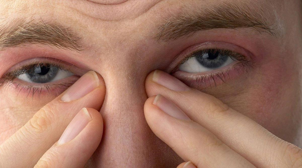 Как быстро снять покраснение глаз в домашних условиях. как убрать красноту глаз дома - womanem