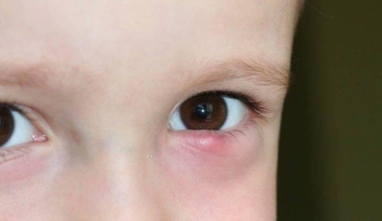 Лечение халязиона у детей нижнего и верхнего века: причины и отзывы