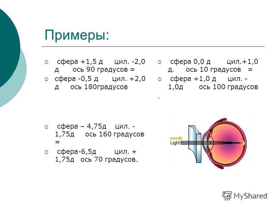 Особенности использования контактных линз для коррекции астигматизма