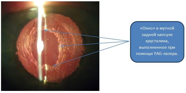 Фиброз (помутнение) задней капсулы хрусталика