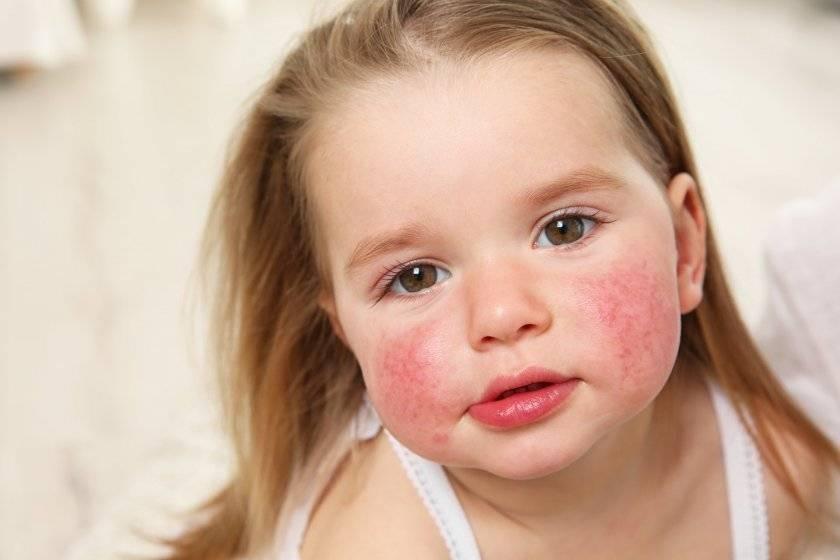 Чем лечить аллергию на глазах у взрослых и детей?