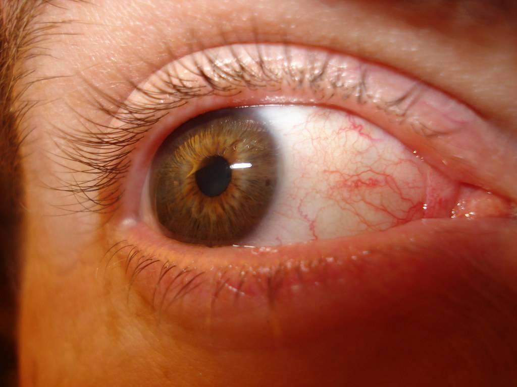 Что такое фоновая ретинопатия у детей и взрослых