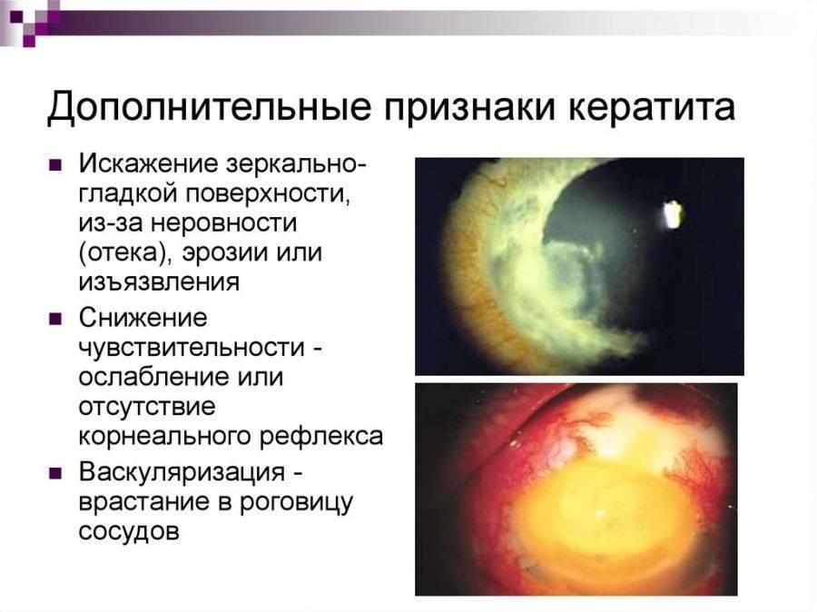 Нитчатый кератит глаза - симптомы и лечение патологии