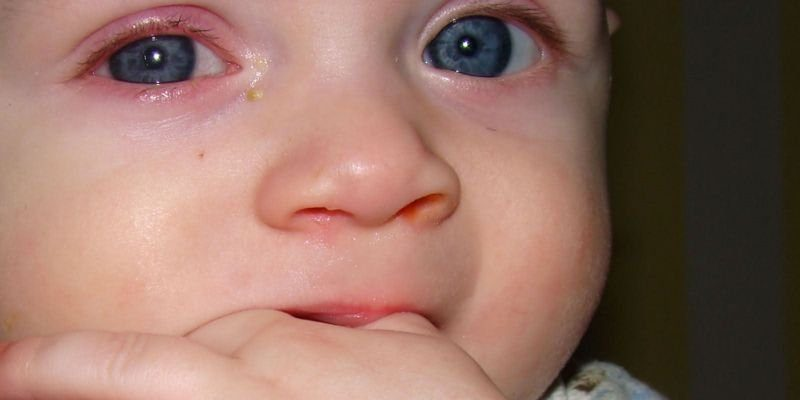 Что делать если закисает глазик у новорожденного или взрослого