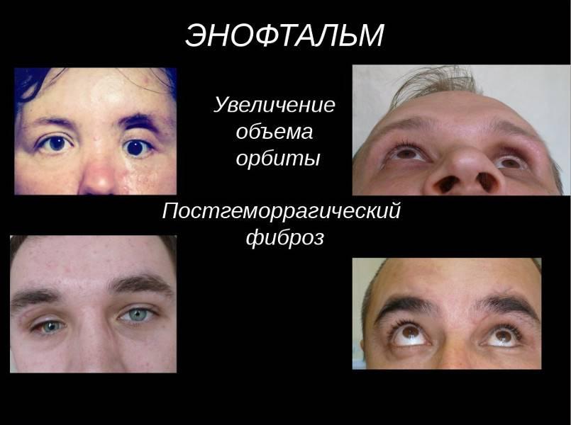Восстановление орбиты, травма глаза, хирургическое лечение, сохранение зрения сайт «мы о здоровье»