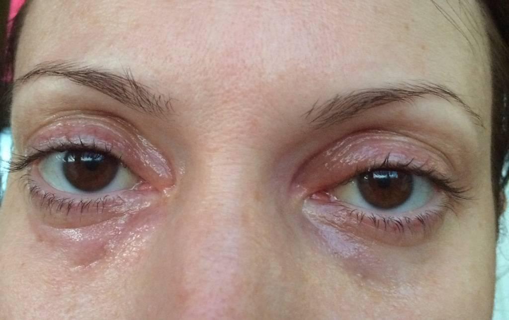 Отекают верхние веки глаз: причины появления и признаки отёков