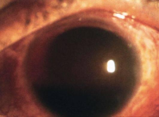 Признаки и методы лечения эндофтальмита