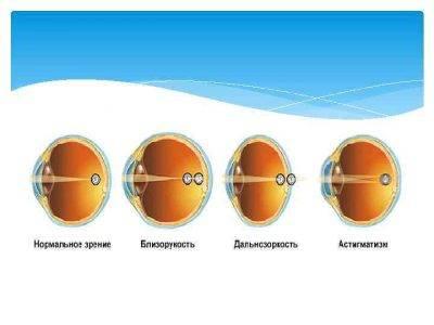Причины и лечение миопического астигматизма