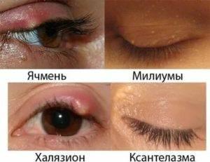 Ячмень или халязион: как отличить по симптомам и вылечить правильно и быстро