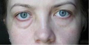 Отек верхнего века одного глаза - причины и лечение у взрослых, отекают верхние веки глаз: причины | медицинский портал spacehealth