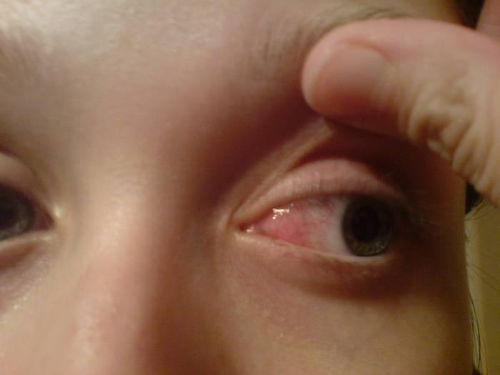 Воспаление глаза у ребенка: причины и симптомы заболеваний