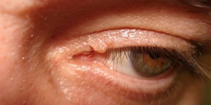 Пузырек на глазу