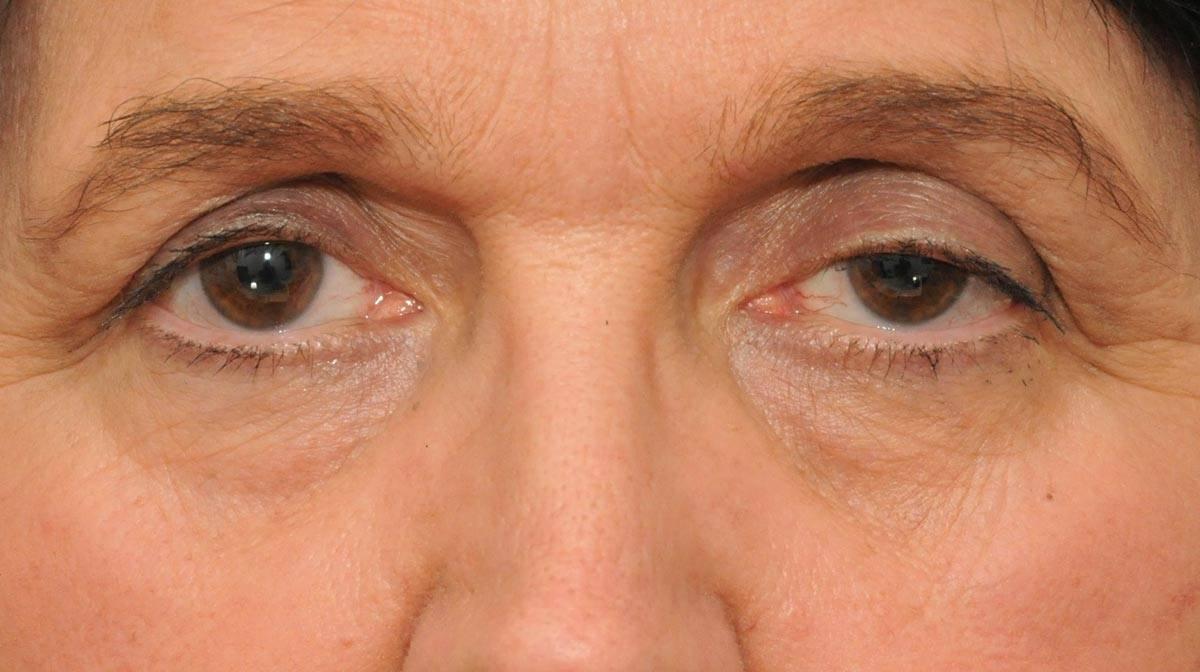 """Птоз века: симптомы и лечение - """"здоровое око"""""""
