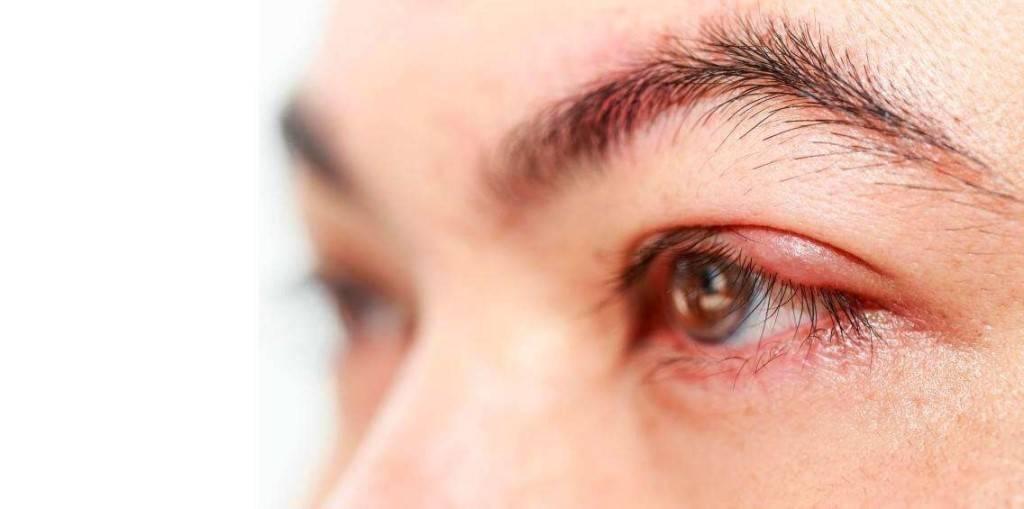 Шишка после ячменя на глазу болит