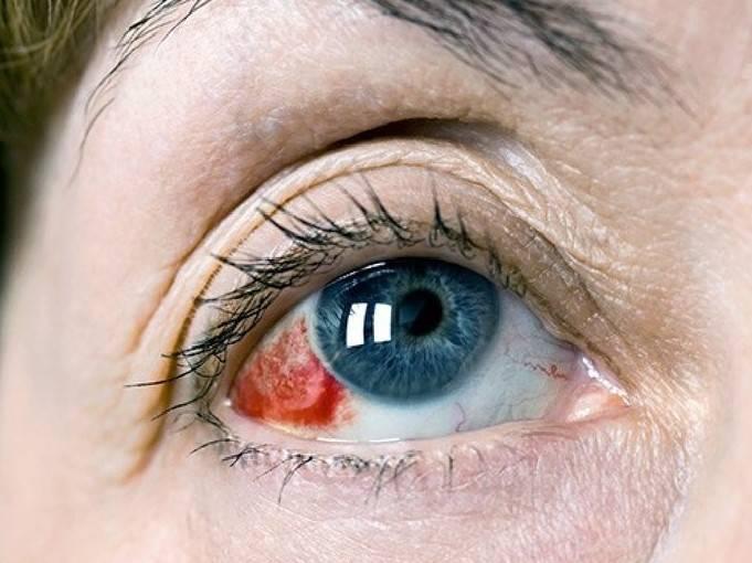 Отек роговицы глаза: причины, симптомы (фото) и лечение