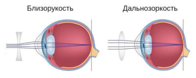 Как называется близорукость и дальнозоркость одновременно