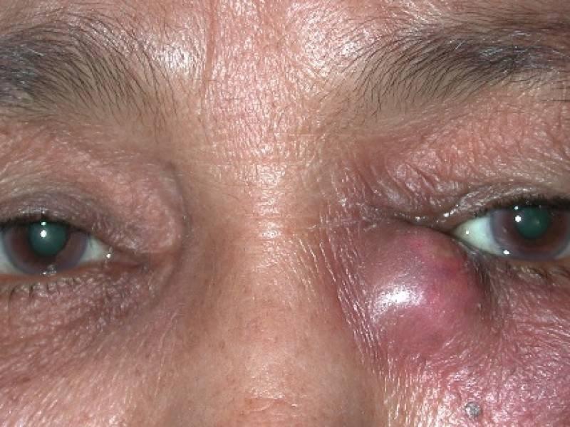 Воспаление слёзного канала у взрослых: симптомы и лечение oculistic.ru воспаление слёзного канала у взрослых: симптомы и лечение