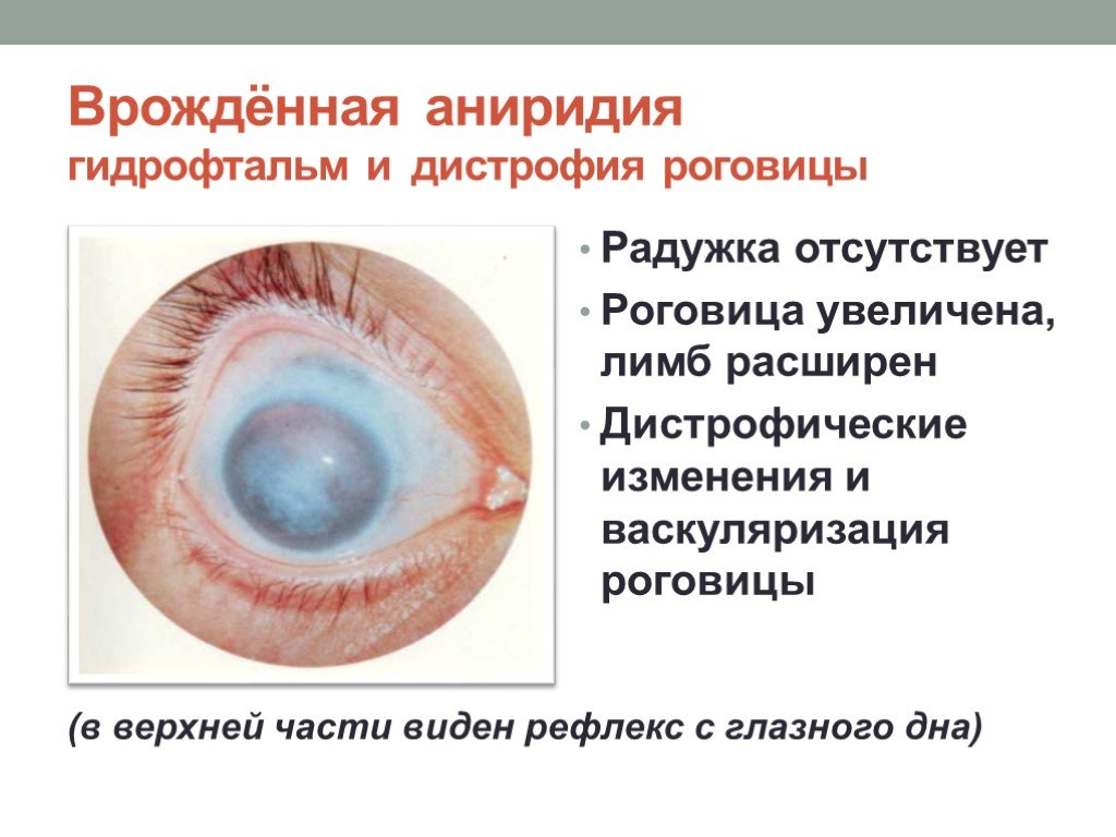Анизокория: что это такое, причины, симптомы, лечение