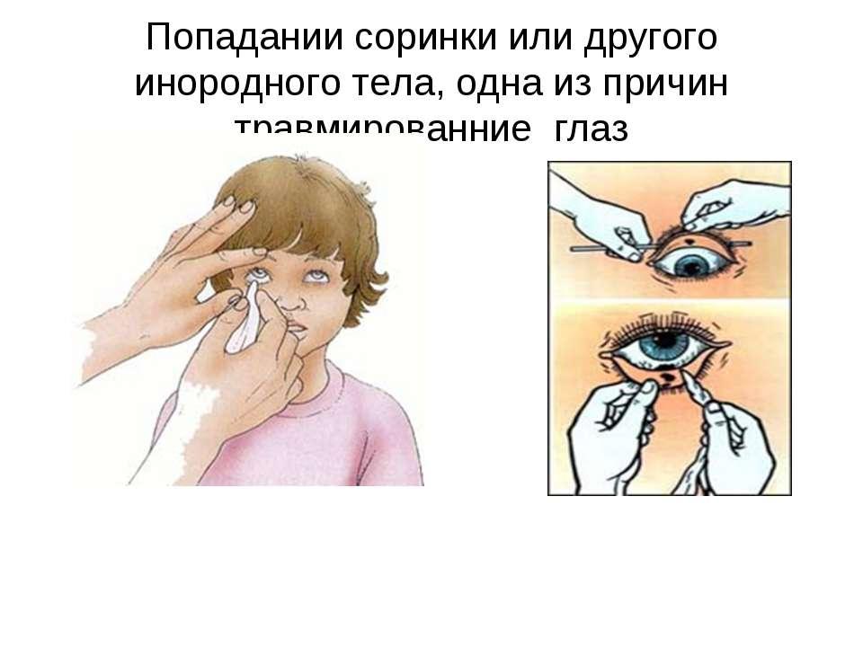 Что делать, если попала металлическая стружка в глаз? как вытащить стружку из глаза?