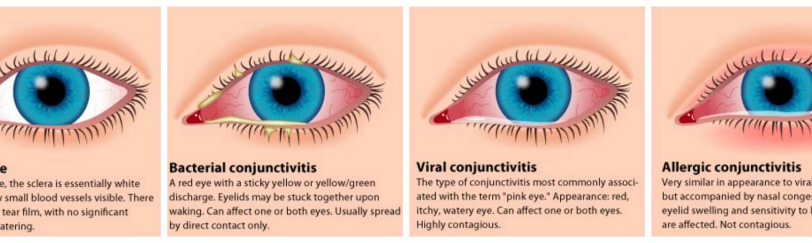 Хронический конъюктивит