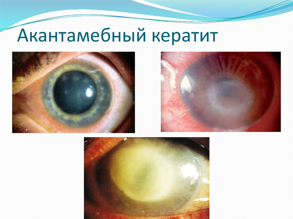 Кератит – что это такое, симптомы и лечение, фото, причины, классификация