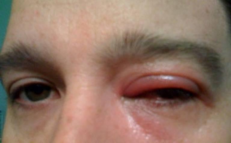 Демодекоз глаз у человека - симптомы, диагностика и лечение