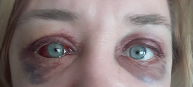 Болят глаза от линз – почему?