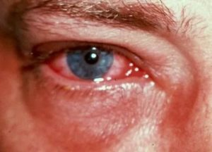 Если йод попал в глаз что делать. как лечить ожоги от йода