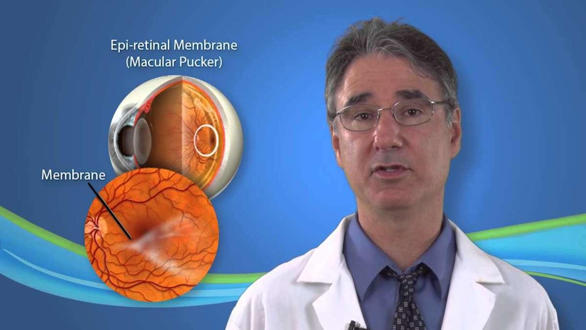 Эпиретинальная мембрана глаза, лечение, код по мкб 10, отзывы об операции