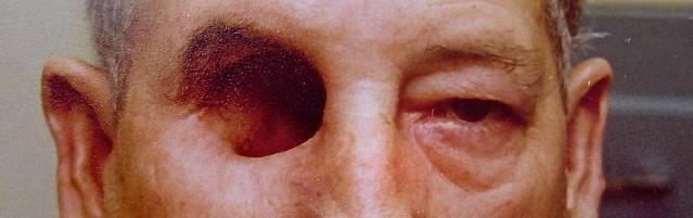 Что такое эвисцерация глазного яблока, показания к операции oculistic.ru что такое эвисцерация глазного яблока, показания к операции