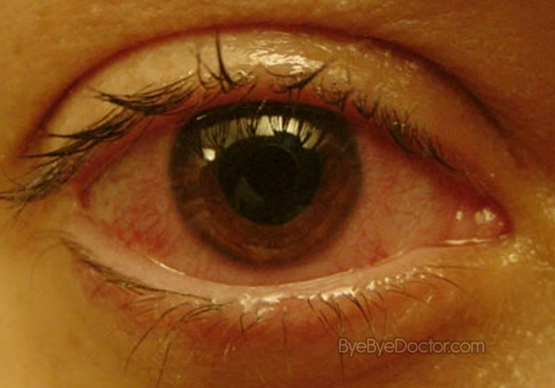 Увеит глаза: симптомы и лечение воспаления сосудистой оболочки глаза в острой и хронической форме заболевания