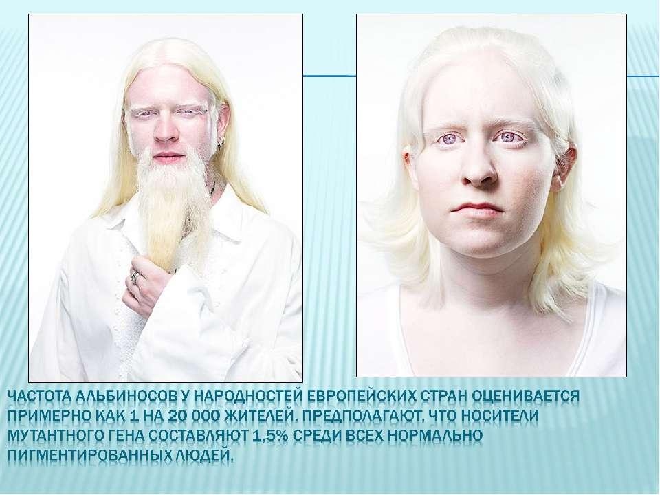 Альбинизм, причины болезни и ее лечение