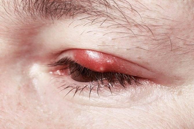Герпес на глазу: симптомы и лечение – напоправку