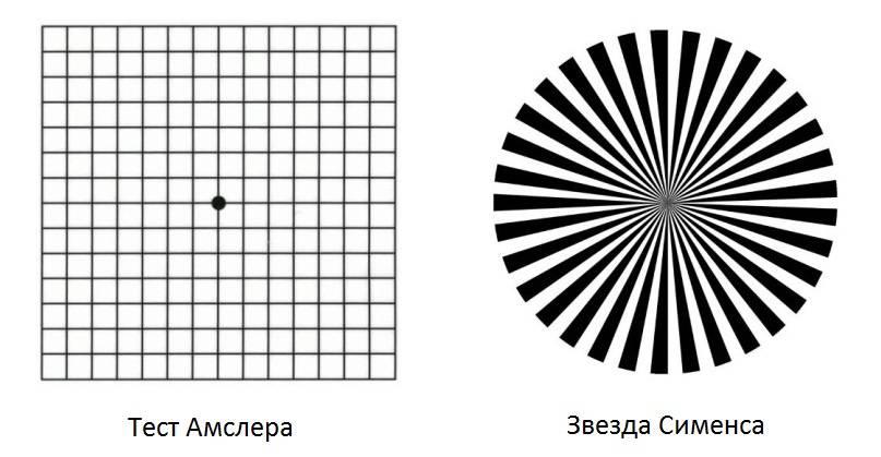 Тест амслера: сетка для глаз на зрение, решетка и таблица для проверки, как пользоваться, что это такое