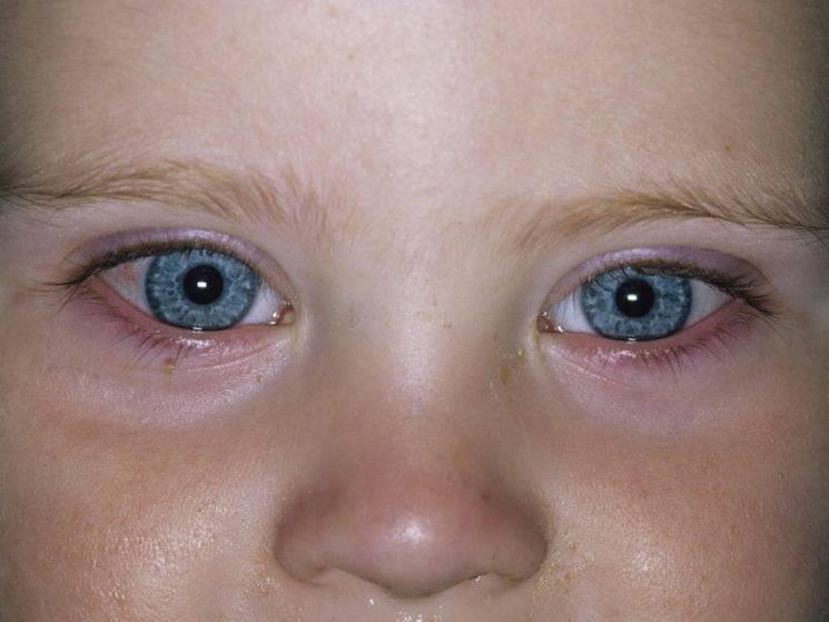 Воспалился глаз у ребенка: что делать, чем лечить