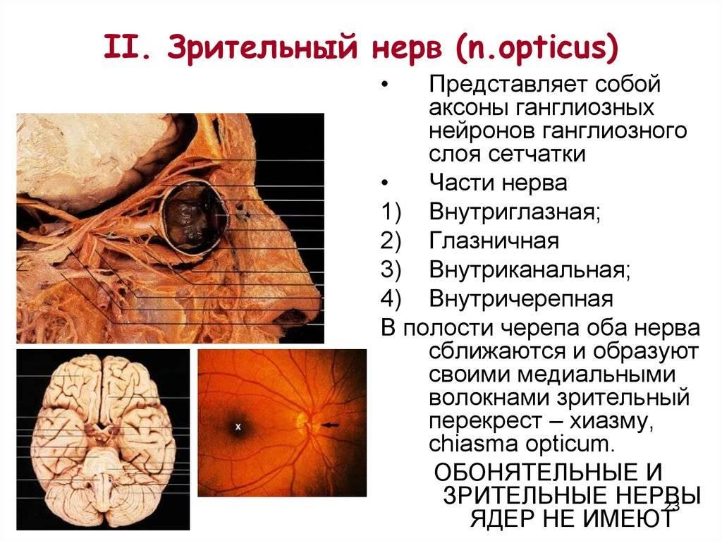 Зрительный нерв - что это такое, строение, функции, боезни и лечение