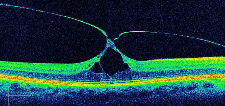 Эпиретинальная мембрана глаза: причины и лечение oculistic.ru эпиретинальная мембрана глаза: причины и лечение