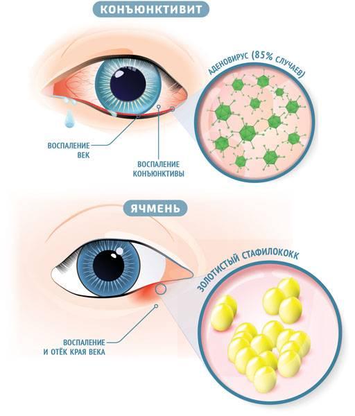 Ячмень или халязион: сходство и отличие. другие болезни органов зрения