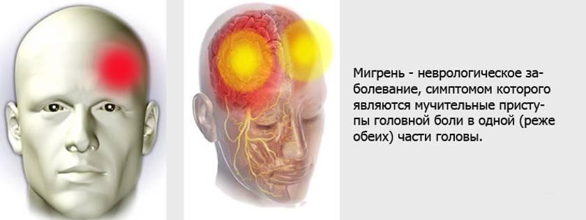 Головная боль в висках и глазах, причины появления