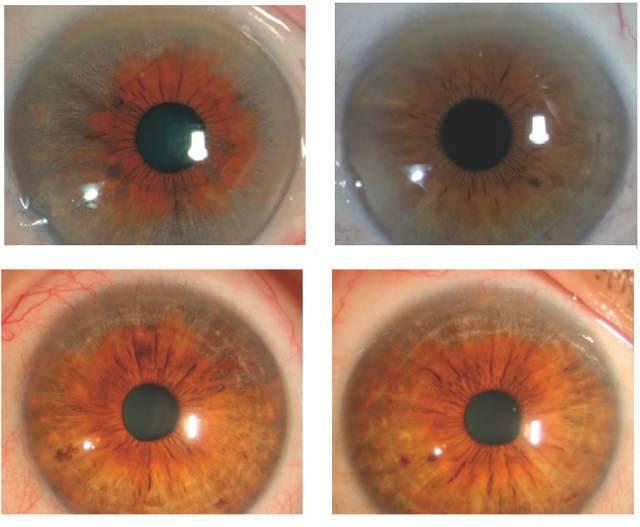 Увеит: что это такое, симптомы и лечение глаза в домашних условиях, причины вялотекущего у детей, как лечить глазную болезнь