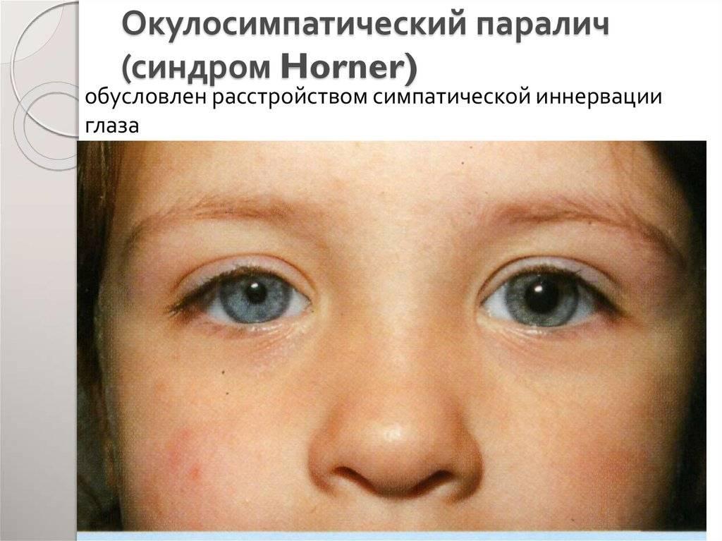Синдром фукса вторичная глаукома