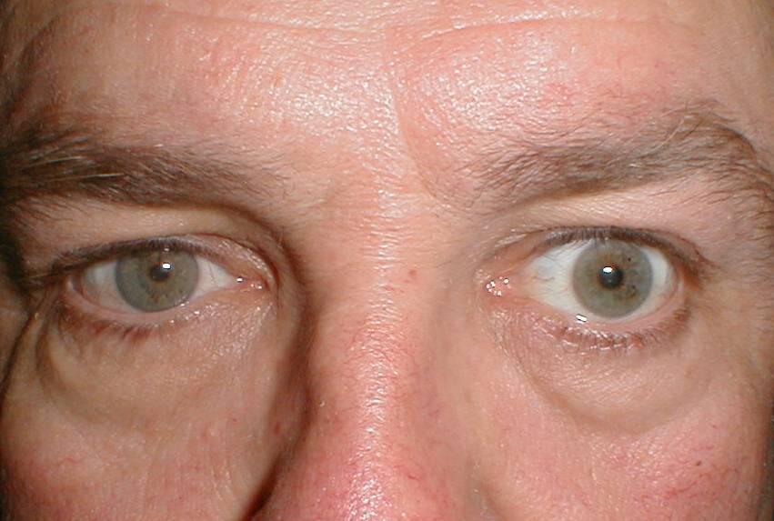 Птоз, причины, симптомы, лечение птоза. все о глазных болезнях.