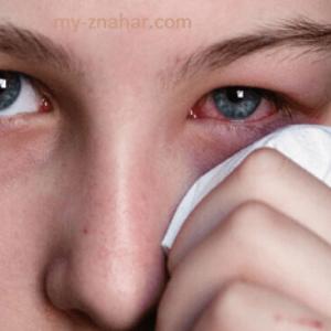 Продуло глаз симптомы и лечение народными средствами