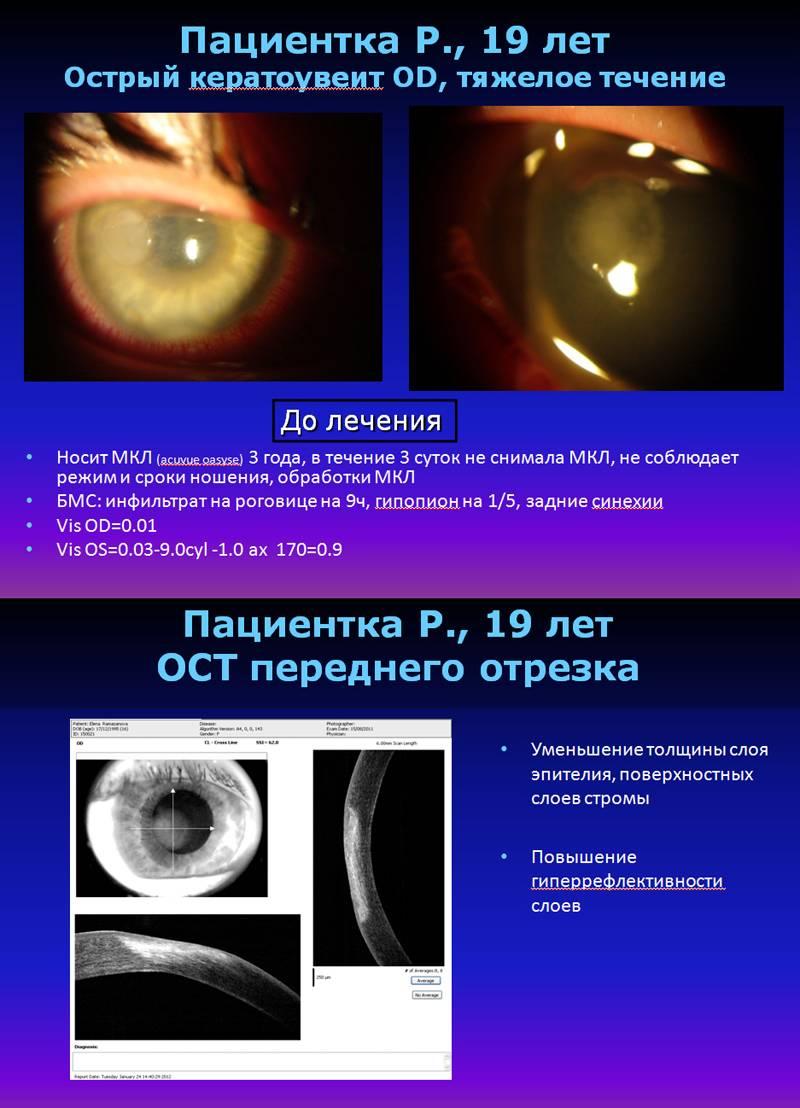 Кератит глаза: причины, симптомы и лечение воспаления роговицы, что это такое (фото)