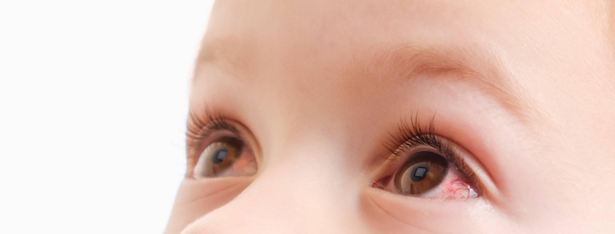 Лопнувший сосуд в глазу у ребенка - причины и лечение