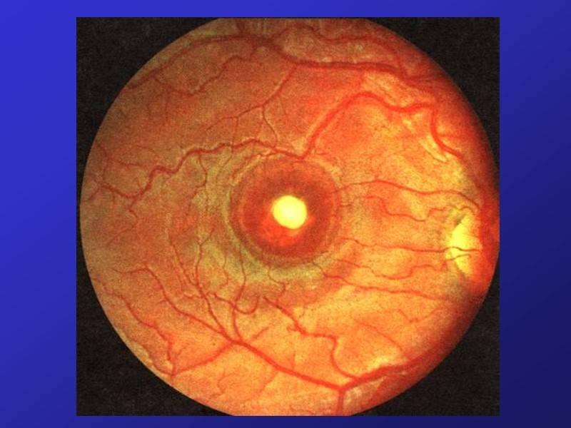 Дистрофия сетчатки глаза: что это такое, опасно ли это, виды заболевания, симптомы, диагностика и профилактика