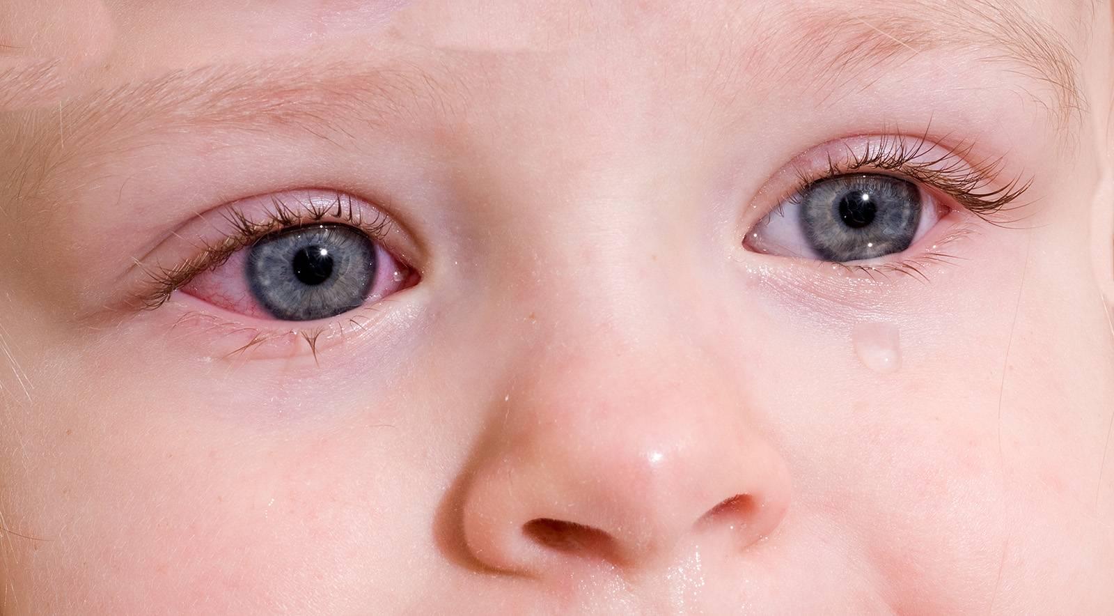 Лечение конъюнктивита у ребёнка: рецепты и методы