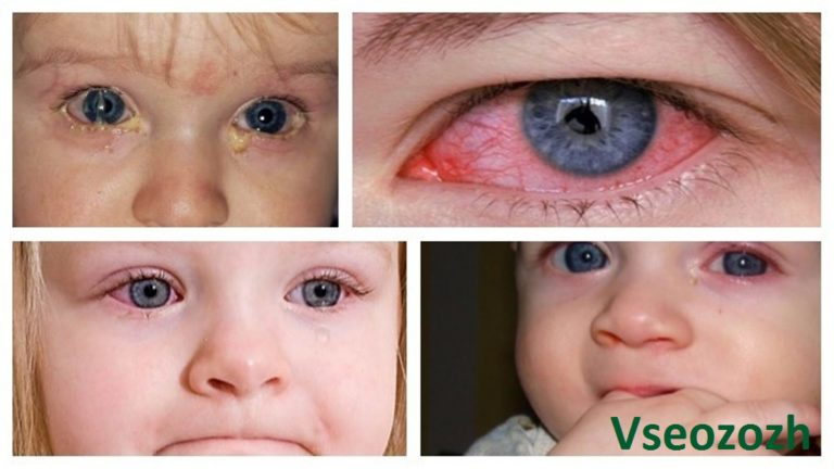 Температура при конъюнктивите у детей: причины и способы лечения