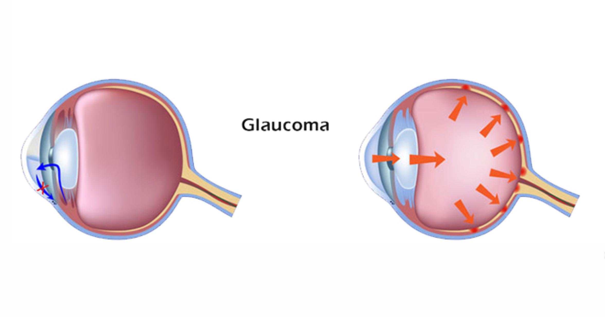 Как не допустить слепоты или пять причин, по которым развивается вторичная глаукома